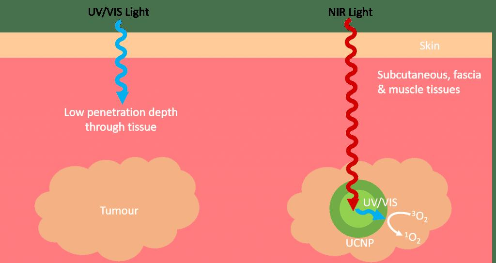 Upconversion photodynamic therapy (UCNP)